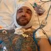 Peick geeft gruwelijke foto's van blessures vrij!